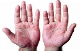Сухая кожа тела: причины, симптомы и решения