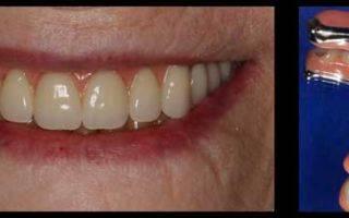 Что лучше поставить на жевательные зубы: импланты или мосты?