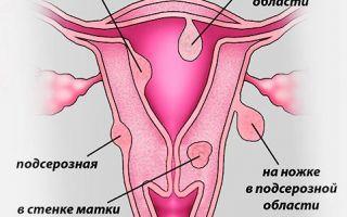 Что такое субсерозная миома матки?