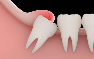 Зуб мудрости травмирует щеку