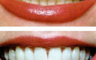 Суть системы отбеливания зубов zoom