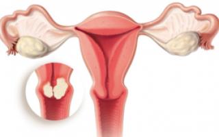 Конизация шейки матки для устранения предраковых состояний: соглашаться на процедуру или нет?