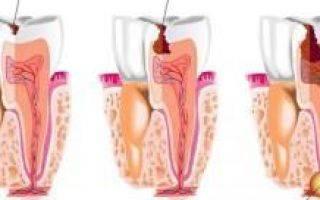 Ганулема на зубном корне