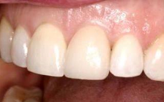 Подпиливание зубов: можно ли подпилить передние резцы (фото до и после)