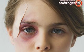 Как снять опухоль после удара на лице народными средствами?