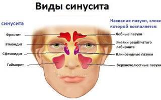 Синусит и аденоиды в чем разница