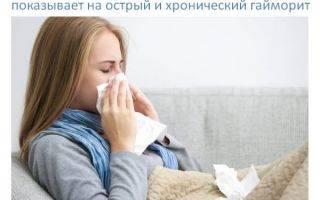 Дают ли больничный при остром синусите