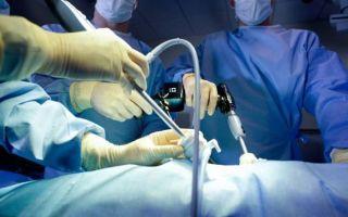 Беременность после лапароскопии