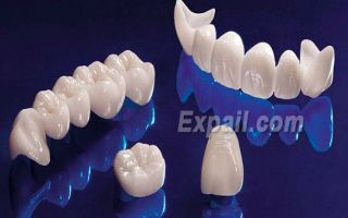 Препарирование зубов под виниры и обточка эмали