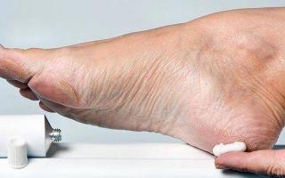 Обзор эффективных лаков от грибка ногтей