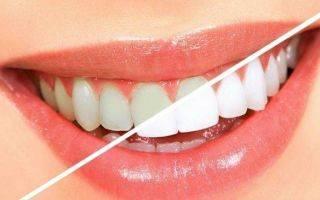 Можно ли чистить зубы после пломбирования