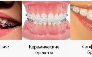 Брекеты на внутреннюю сторону зубов: как поставить и сколько стоят
