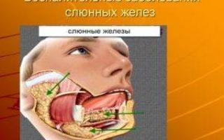Сиаладенит подъязычной слюнной железы