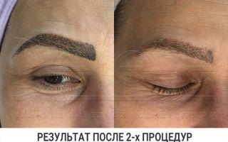 Лазеры для косметологии