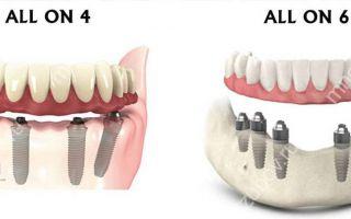 Какие методы реставрации зубов эффективны?