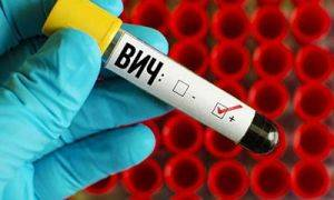 Температура при ВИЧ: норма, патология, схема лечения