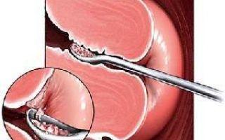 Вакуумная чистка матки после родов последствия