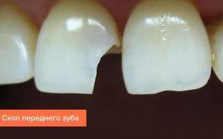 Зуб вырвать или что…???