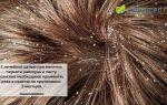 Инструкция по применению пасты от перхоти сульсена: виды, действие, курс лечения