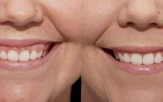 Десневая улыбка: способы исправления, фото до и после коррекции, цены