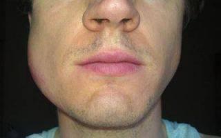 Что делать, если после удаления зуба мудрости болит горло?