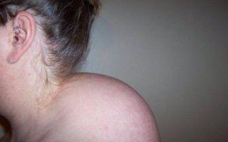 Как убрать холку на шее сзади у женщин. упражнения бубновского, анны куркуриной, видео лечения