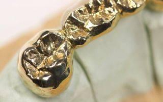 Рейтинг лучших имплантов зубов по производителям