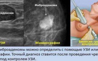 Уплотнение после удаления фиброаденомы в груди