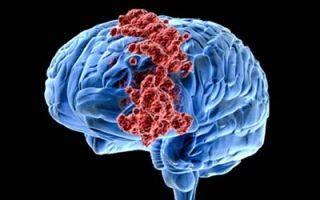 Повышенная температура при опухоли мозга: что нужно знать