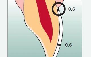 Люминиры на зубы и их стоимость, фото до и после установки
