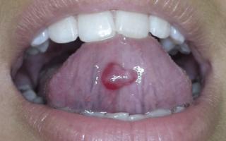 Причины и лечение кисты под языком