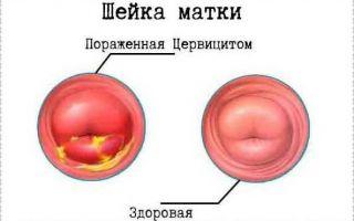 Почему не проходит воспаление в цервикальном канале. как лечить воспаление цервикального канала? видео: виды инфекции, вызывающей заболевания шейки матки