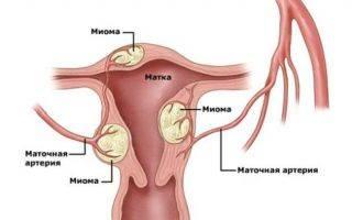 Как диагноз «миома матки» влияет на образ жизни: вы спрашивали