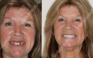Методы восстановления зубного ряда: какой способ лучше и чем они отличаются?