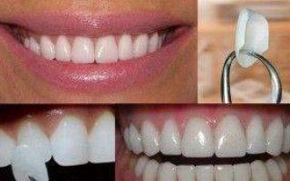 Как делают зубы звезды: все способы и методы, советы медиков, отзывы