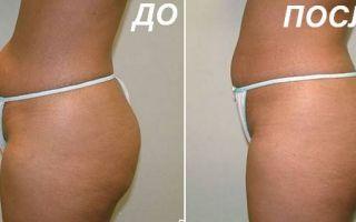 Липосоникс (liposonix) для похудения