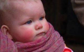 Методы лечения заложенного носа у ребенка по Комаровскому