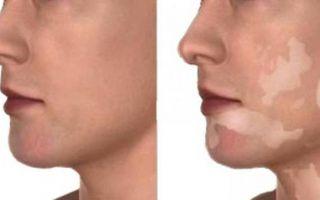Белые пятна на коже: лишай или дерматоз?