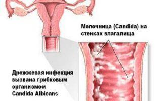 Острая и хроническая молочница у женщин