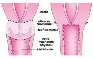 Проведение высокой ампутации шейки матки: типы лечения и особенности операции