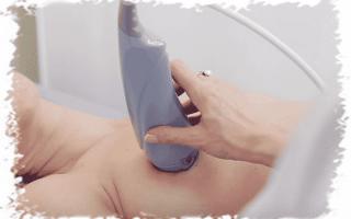 Какие бывают болезни молочных желез у женщин и причины