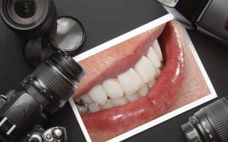 7 методов коррекции десневой улыбки