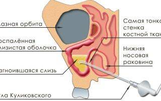 Мицетома гайморовой пазухи, симптомы и лечение грибка в гайморовой пазухе
