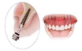 Особенности имплантации зубов верхней челюсти