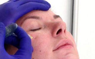 Как убрать малярные мешки под глазами