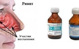 Лечение гайморита перекисью водорода по Неумывакину (отзывы)