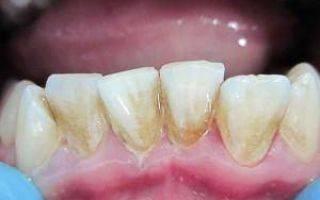 Почему может болеть и ныть зуб под пломбой после пломбирования, что нужно делать
