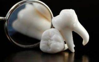 Через какой период времени разрешен алкоголь после удаления зуба?