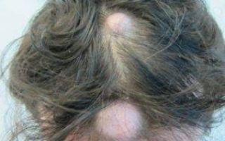 Методы удаления атеромы на голове