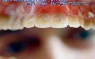 Симптомы аллергии на зубные протезы, методы лечения и профилактики